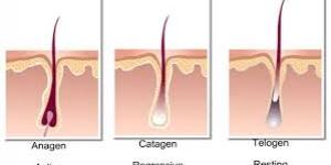 ازالة الشعر بالليز اضراره وفوائده