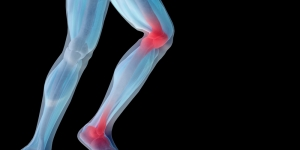 اسباب الام الركبة والظهر عند المرأة