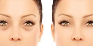 نصائح طبيعية للتخلص من انتفاخات العين