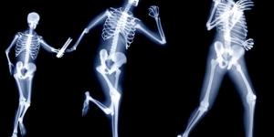 نصائح لتجنب الاصابة بهشاشة العظام