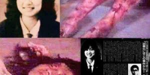 الفتاة ضحية التعذيب الوحشى