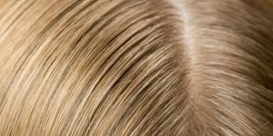 وصفات الجرجير لتكثيف الشعر